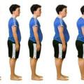 Síndrome metabólico, una herramienta diagnóstica